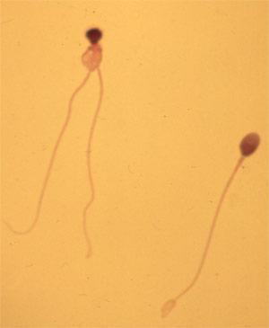 Сперматозойды уроды